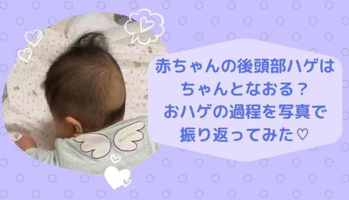 赤ちゃんの後頭部ハゲはなおる?