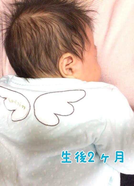 生後2か月のときのおハゲ