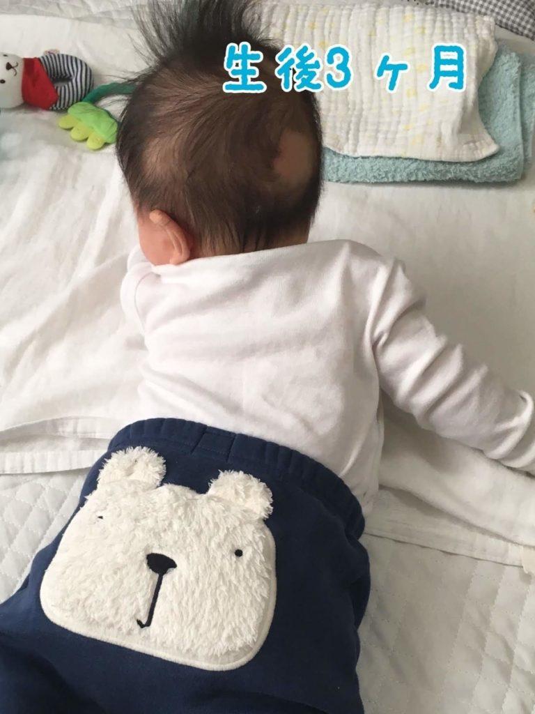 はげる 赤ちゃん