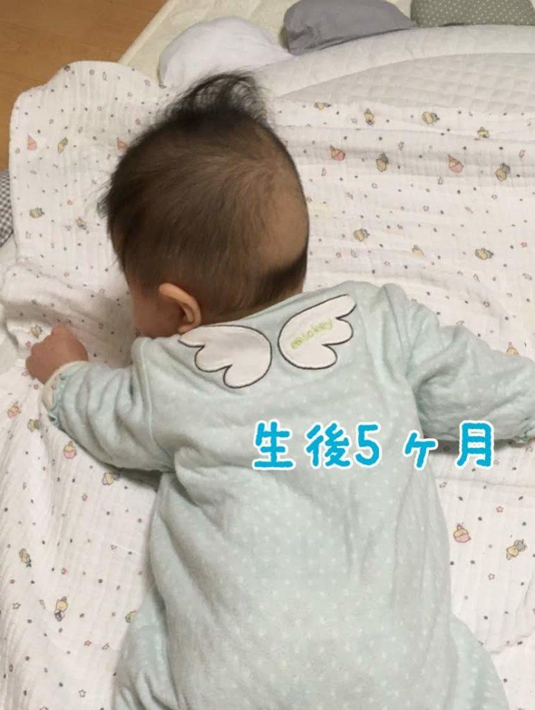 生後5ヵ月のときのおハゲ