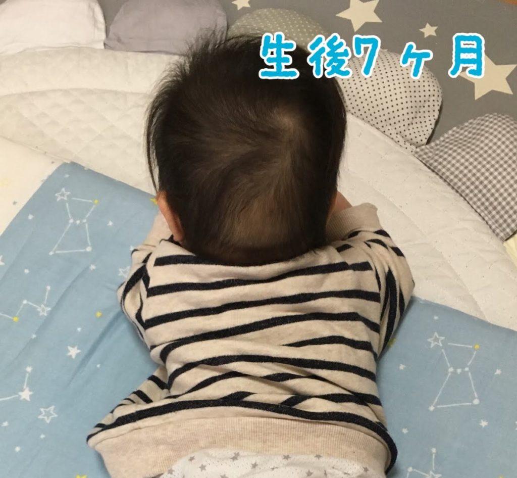 生後7ヵ月のときのおハゲ